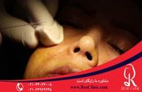 تزریق ژل | فیلم تزریق ژل | کلینیک پوست و مو رز | 7