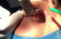 دو واحد ایمپلنت کاشته شده|کلینیک دندانپزشکی مدرن