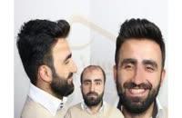فیلم کاشت مو به روش SUT مرکز مو رنسانس (13).mp4