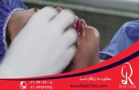 تزریق چربی | فیلم تزریق چربی | کلینیک پوست و مو رز | شماره 11