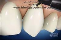 اصلاح ساییدگی (ابرژن) دندانی با کامپوزیت