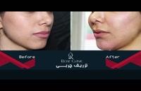 تزریق چربی | فیلم تزریق چربی | کلینیک پوست و مو رز