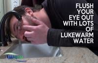 کمک های اولیه هنگام آسیب چشمی