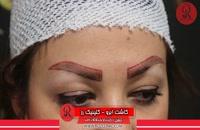 کاشت ابرو | فیلم کاشت ابرو | کلینیک پوست و مو رز | شماره22