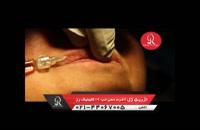تزریق ژل | فیلم تزریق ژل لب | کلینیک پوست و مو رز | 2