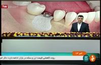 بازخورد فعالیت های کلینیک دندانپزشکی مدرن در خبرهای روز
