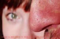 چرا بینی مردان بزرگ تر از زنان است ؟