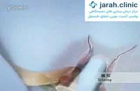 درمان بواسیر (درمان هموروئید) با لیزر
