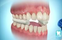 ارتودنسی دندان | کلینیک دندانپرشکی تاج