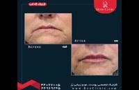 تزریق ژل | فیلم تزریق ژل لب | کلینیک پوست و مو رز