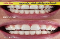 وضعیت قبل و بعد دندان ها, قبل از مراجعه به دندانپزشکی زیبایی
