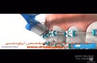 متخصص ارتودنسی در غرب تهران 3