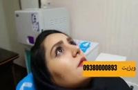 جراحی زیبایی مشهد | 09380000893