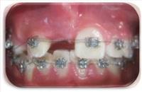 ارتودنسی ثابت|کلینیک دندانپزشکی مدرن