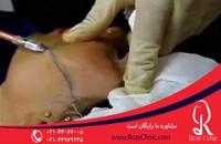 تزریق چربی | فیلم تزریق چربی | کلینیک پوست و مو رز | شماره 10