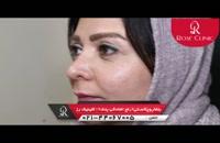 بلفارو پلاستی |رفع افتادگی پلک | کلینیک پوست و مو رز | شماره2