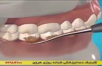 نحوه از بین بردن پلاک دندان