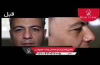بلفارو پلاستی |رفع افتادگی پلک | کلینیک پوست و مو رز | شماره1