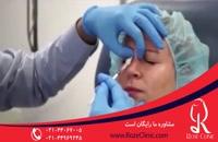 تزریق بوتاکس | بوتاکس | فیلم تزریق بوتاکس | کلینیک پوست و مو رز | 6