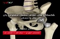 علت های شکستگی های اطراف مفصل مصنوعی لگن و ران چیست و چگونه درمان میشود