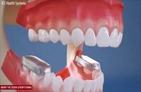 ارتودنسی دندان - کلینیک دندانپزشکی تاج