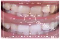 نمونه درمانهای زیبایی انجام شده توسط دکتر فرشته فرشچی