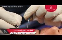 کاشت ابرو   فیلم کاشت ابرو   کلینیک پوست و مو رز   شماره 5