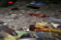 فیلم دلخراش از مجروحین حادثه تروریستی اتوبوس کارکنان سپاه سیستان و بلوچستان