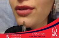 تزریق ژل | فیلم تزریق ژل | کلینیک پوست و مو رز | 12