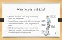 راه رفتن پارکینسونی و درمان آن.09120452406بیگی.کاردرمانی فیزیوتراپی پارکینسون