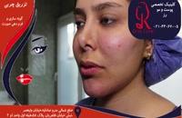 تزریق چربی | فیلم تزریق چربی | کلینیک پوست و مو رز | شماره 8