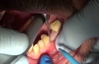 کاشت دندان بدون برش لثه و خونریزی|کلینیک دندانپزشکی مدرن