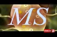 بيماری ام اس MS