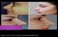 جراح بینی معروف مشهد-جهت دریافت وقت مشاوره ی رایگان-09157037008