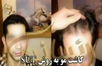 فیلم کاشت مو به روش SUT مرکز مو رنسانس (8).mp4