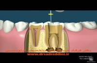 ارتودنسی دندان عصب کشی شده