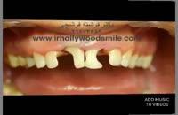 ترمیم پوسیدگی دندان با کامپوزیت