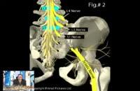 تاثیر قرص گاباپنتین بر دردهای نوروپاتیک