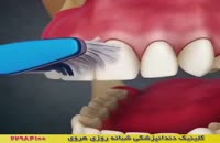 چرا باید از نخ دندان و مسواک استفاده کرد؟