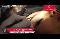 کاشت ابرو   فیلم کاشت ابرو   کلینیک پوست و مو رز   شماره 6