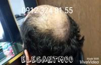 ترمیم موی الگانت /02188962259/پروتز مو