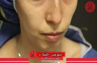 تزریق چربی | فیلم تزریق چربی | کلینیک پوست و مو رز | شماره21