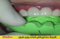 روکش دندان چیست؟ فیلم روکش موقت دندان