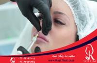 تزریق ژل | فیلم تزریق ژل | کلینیک پوست و مو رز | 11